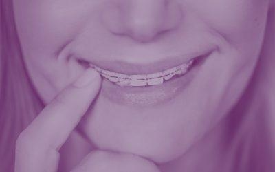 Ortodoncia, ¿antes o después de la colocación de implantes?